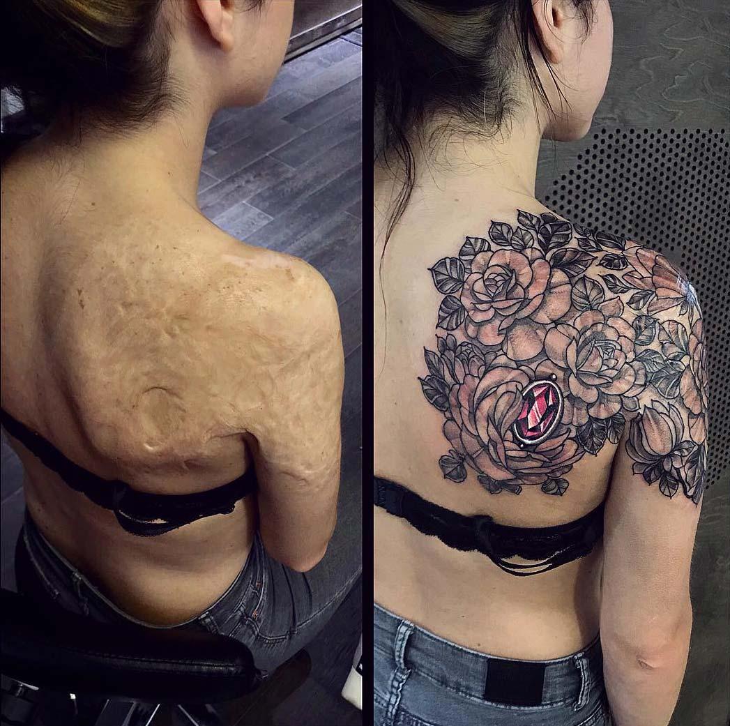 тату для перекрытия шрамов 3