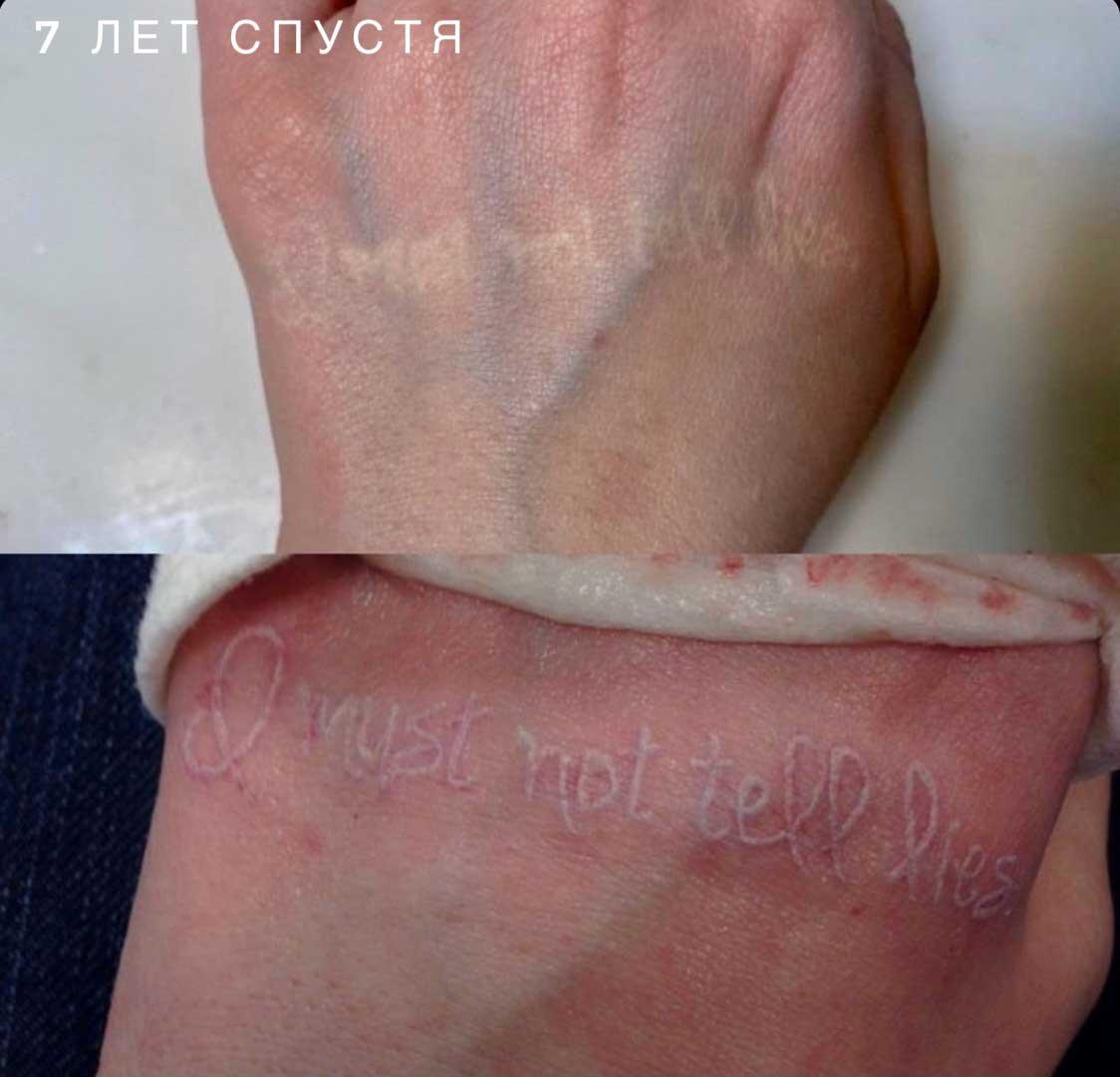 Как выглядят через время белые татуировки